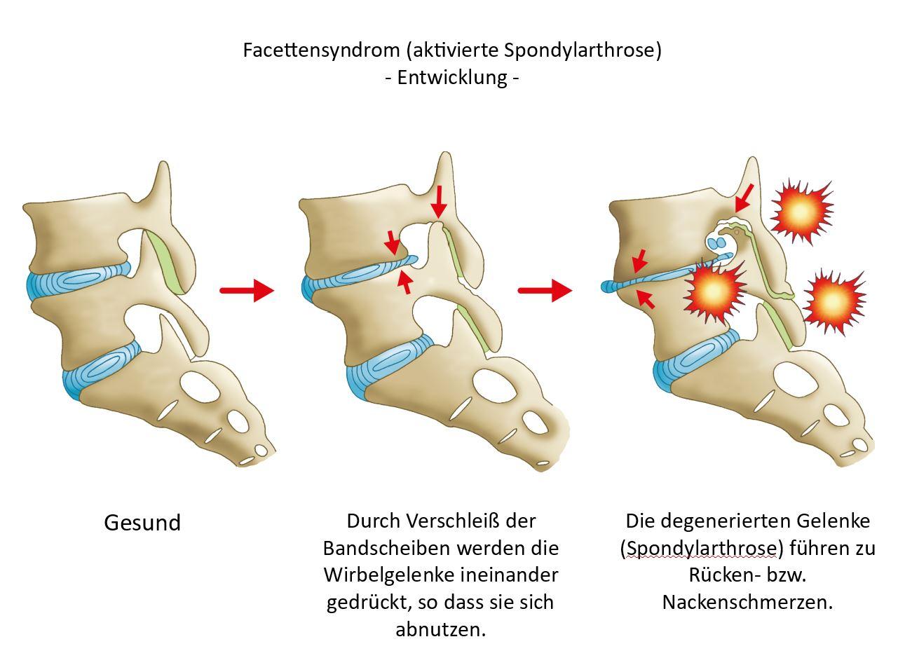 alphaSPINE - Lendenwirbelsäule - Schmerztherapie in Bamberg